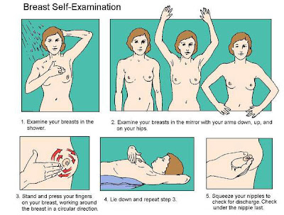 Clinical Breast Exam
