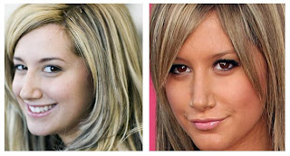 Ashley Tisdale Nose Job Before After