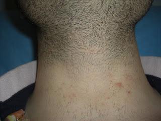 Crece El N Mero De Hombres Que Se Depilan La Barba Del Cuello Y