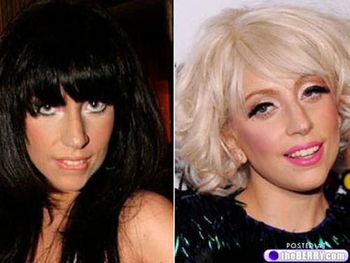 lady gaga before nose job. megan fox nose job before and