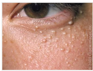 Cosmetologia e esttica milium milia httpiqbdermatologiaatlasmiliomilia02m fandeluxe Image collections