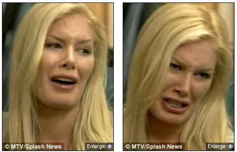 heidi montag before and after all surgery. Heidi Montag breaks down in