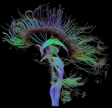 DTI (TRACTOGRAPHY)