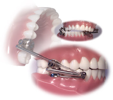 Ortodontia Contempor 194 Nea Efeitos Imediatos Esqueletal E