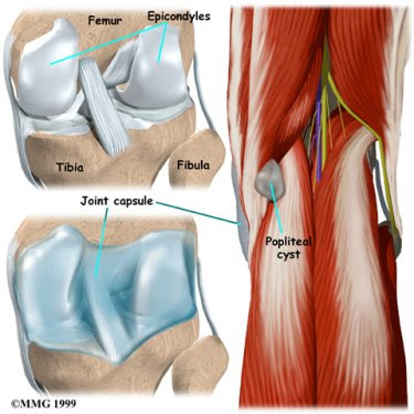Pain behind Knee