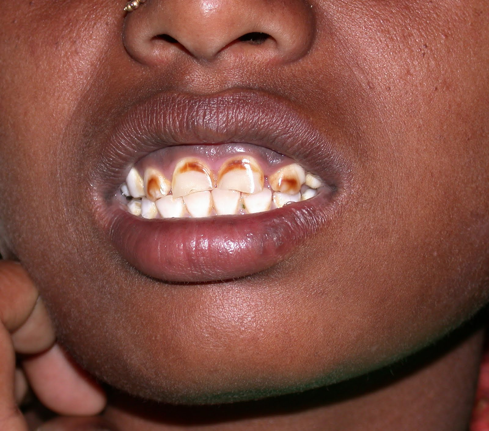 Brown Spots on Baby Teeth http://doctorsgates.blogspot.com/2010/09/fluorosis-dental-staining.html