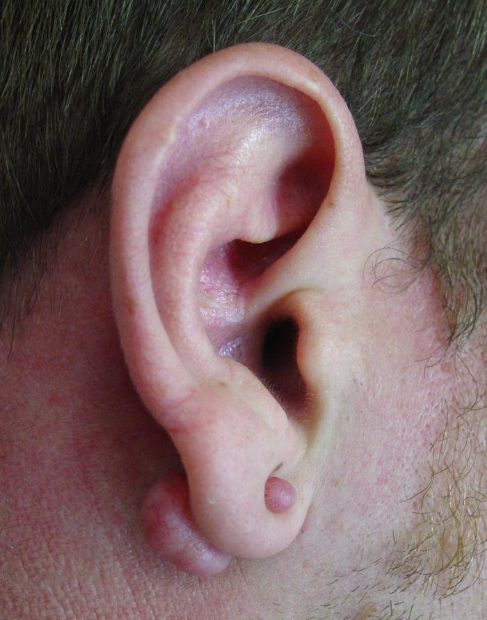 Keloid formation of the auricle's ear lobe is a rare complication of ...