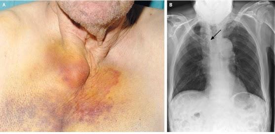 Doctors Gates Anterior Sternal Dislocation
