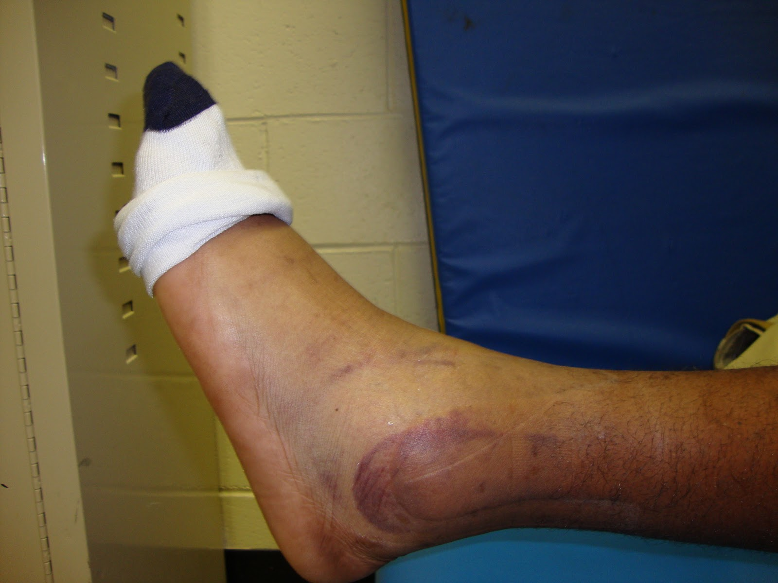 Dedicated to the High School Athletic Trainer: High Ankle ...