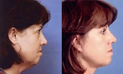 Facelift Result