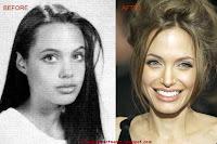 Angelina Jolie Chin Impalnts, Nose Job(rhinoplasty)
