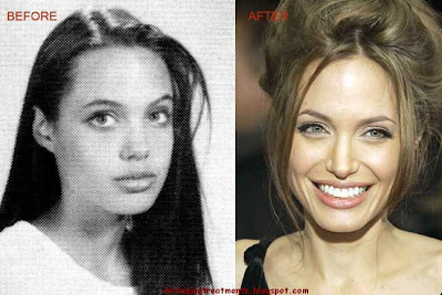 Angelina Jolie Chin Impalnts, Nose Job(rhinoplasty)