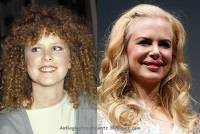 Nicole Kidman lip augmentation injection
