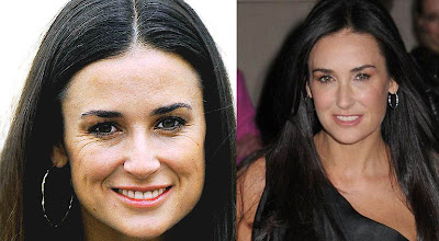 Demi moore Plastic Surgery pic