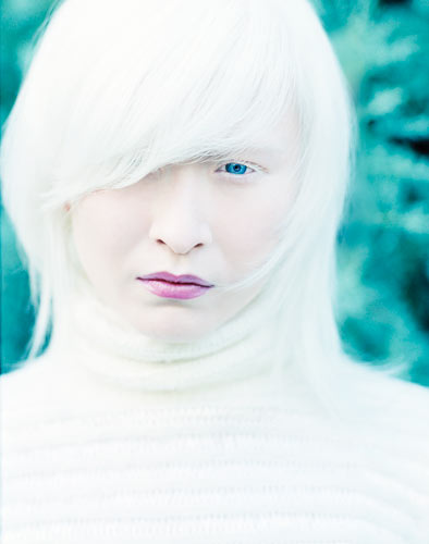 Albinism, as you probably know
