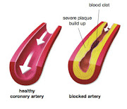 Dissolve Artery Blockage