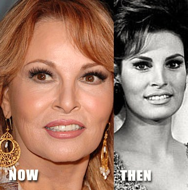 Raquel Welch Plastic Surgery : Before & After Photos