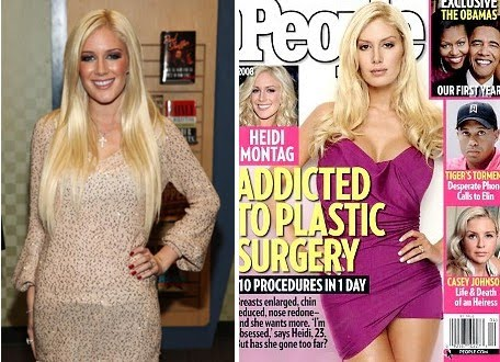 heidi montag after surgery. 2011 Heidi Montag after