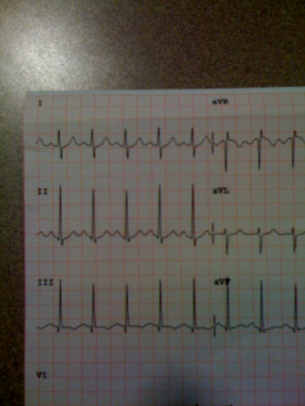 S1Q3T3 EKG Findings Pulmonary Embolism
