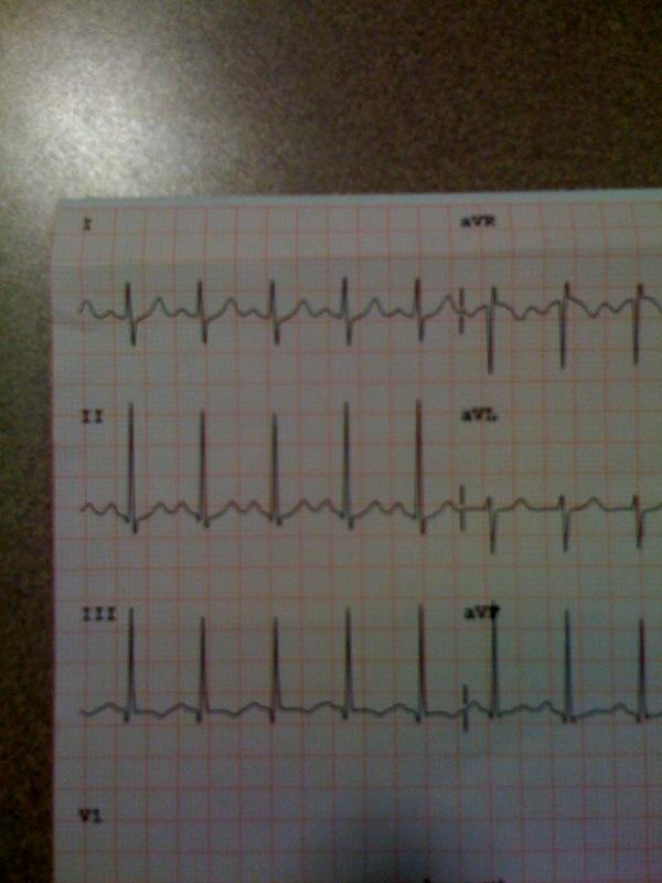 S1Q3T3 EKG Findings Pulmonary Embolism