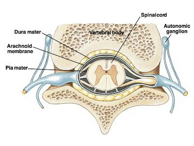 Neurocirugía Distrito Federal: Hernia de Disco Lumbar