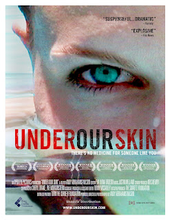 "Review:  ""Under Our Skin"""