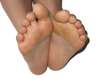 foot ordor