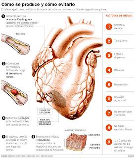 Con 4 medidas se evitaría hasta un 20% de los infartos
