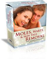 Moles Warts Removal