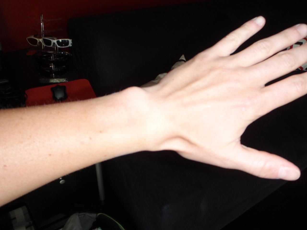 i have a small wrist