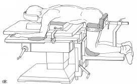 urethral dilatation male