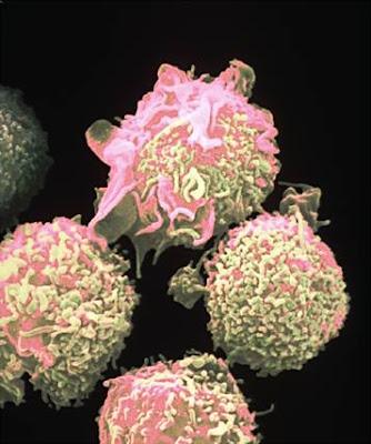 Ciri-ciri dan tanda kanker darah leukemia, cara memeriksa dan cara mencegah sekaligus cara mengobati kanker darah leukemia alami