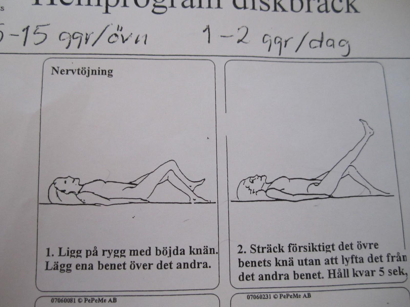 träning efter diskbråcksoperation