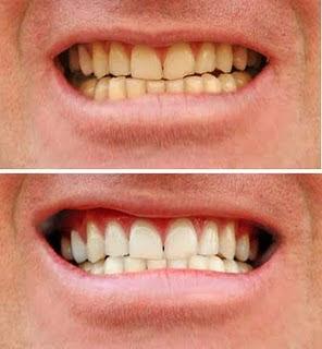 Dicas De Saude Bucal Dr Ledinei Espindula Clareamento Dental A Laser