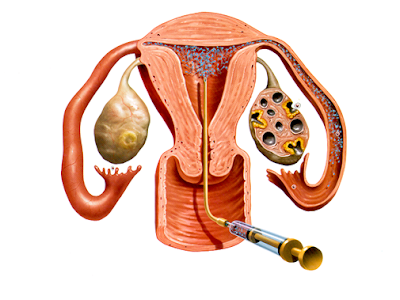 Iui+In+Humen Inventions: Artificial insemination | 400 x 300 png 117kB