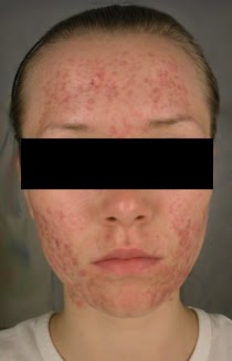 My Roaccutane Journey About Me My Acne And Roaccutane