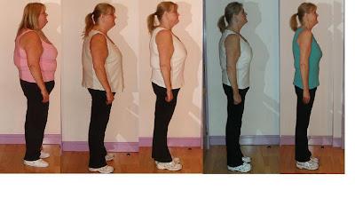 Weight loss dr watertown ny