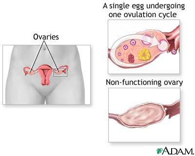 infertility premature ovarian failure