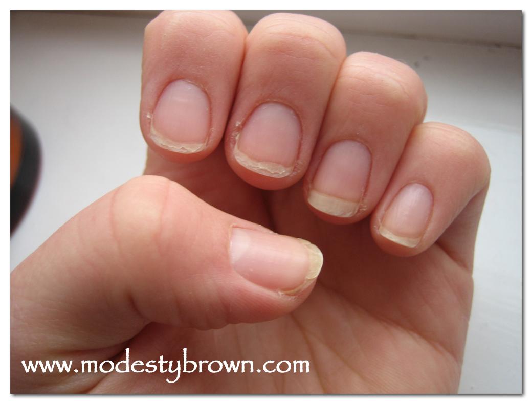 Shellac manicure yellowing