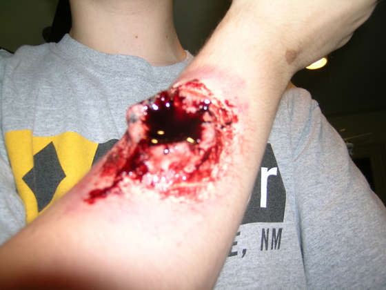 gunshot scar