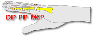 Metacarpophalangeal Joint (MCP) - Back2Health4You