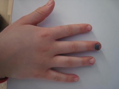 brækket tommelfinger