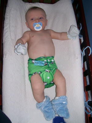 Aiden on his Skin MD regimen and back to his nice baby soft skin :) This was taken 3/29/10