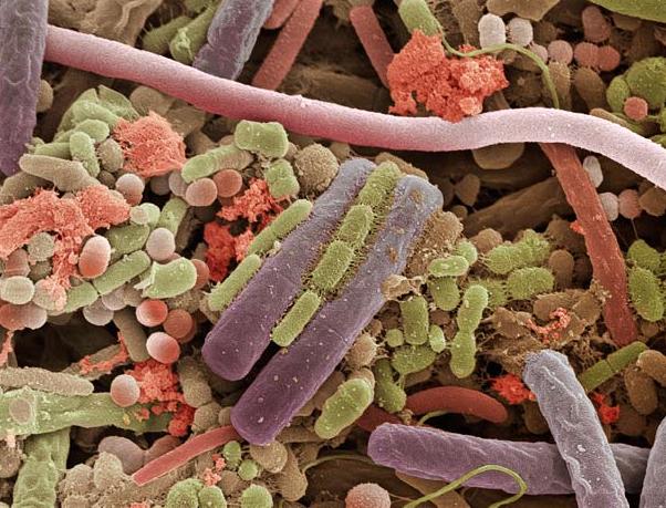Bacterias en la lengua