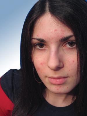 fcf1d9c7da82 Aujourd hui parlons d un sujet peu sexy, l acné chez l adulte.  Contrairement à ce que l on pourrait croire, l acné n est pas seulement la  bête noire des ...