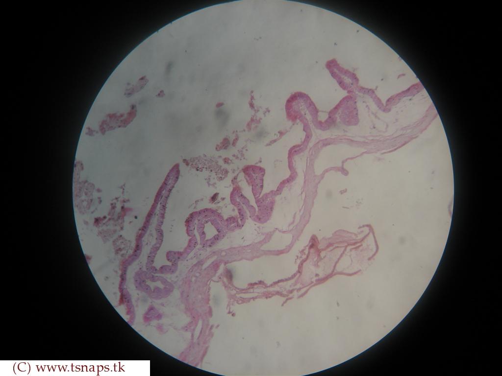 Histology Slides Database: Gall bladder histology slides