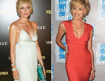 Sharon Stone breast implants before and after? (image hosted by plasticcelebritysurgery.com)