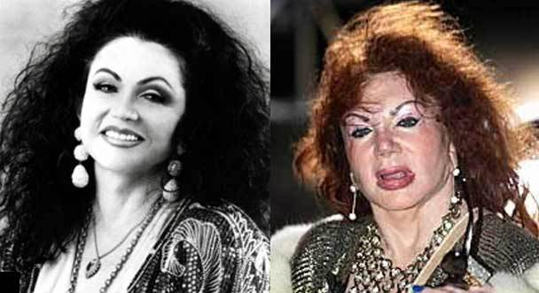 Jackie Stallone Before And After