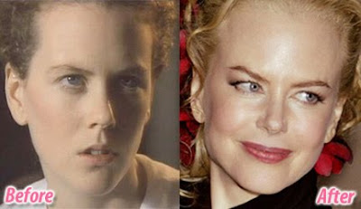 nicole kidman and plastic surgery