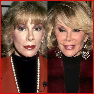 Joan Rivers before and after plastic surgery (image hosted by http://www.plasticcelebritysurgery.com)